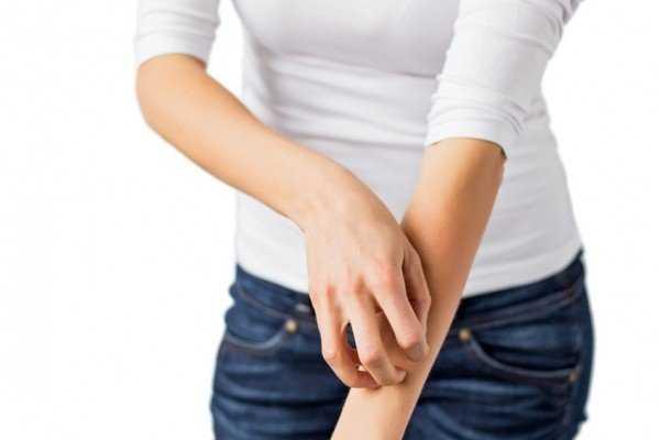 Чем опасны укусы постельных клопов и какие болезни они переносят
