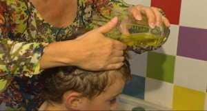 Как выглядят гниды на голове у человека?