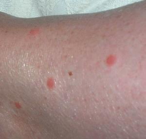 Почему кусаются тараканы