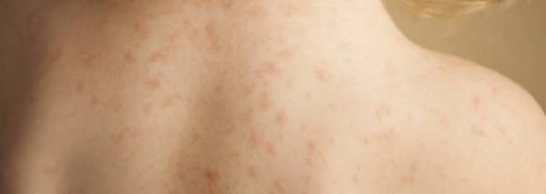 Зуд и сыпь симптомы укусов блох. Первая помощь и лечение укусов