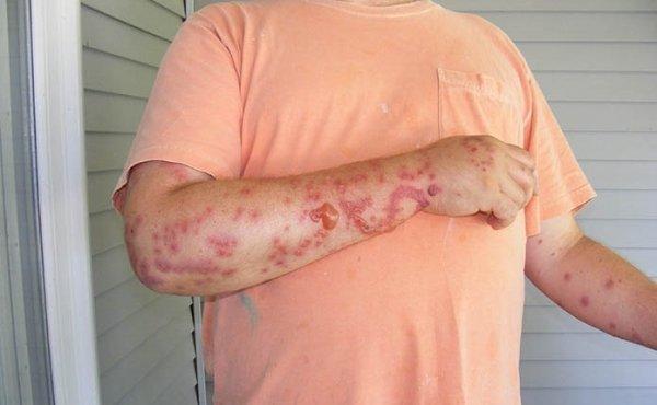 Чем вызвана аллергия на клопов и возможно ли ее вылечить?